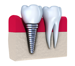 Dental Implant - York, PA Dentist